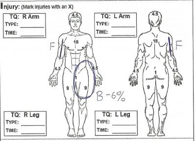 Przykłady obrażeń #1 001