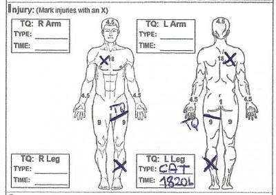 przykład obrażeń #2 001